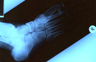 x-ray of my right foot